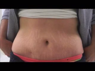 ideal candidate for abdominoplasty tummy tuck