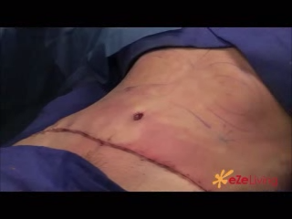 what goes into a surgical procedure